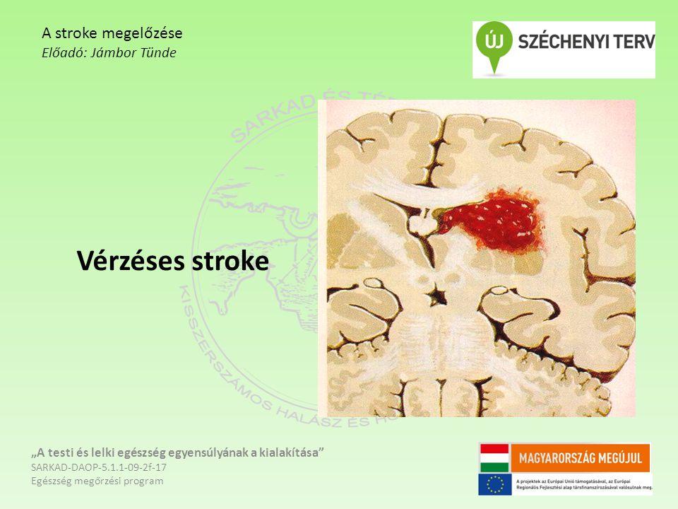 Vérzéses stroke A stroke megelőzése Előadó: Jámbor Tünde