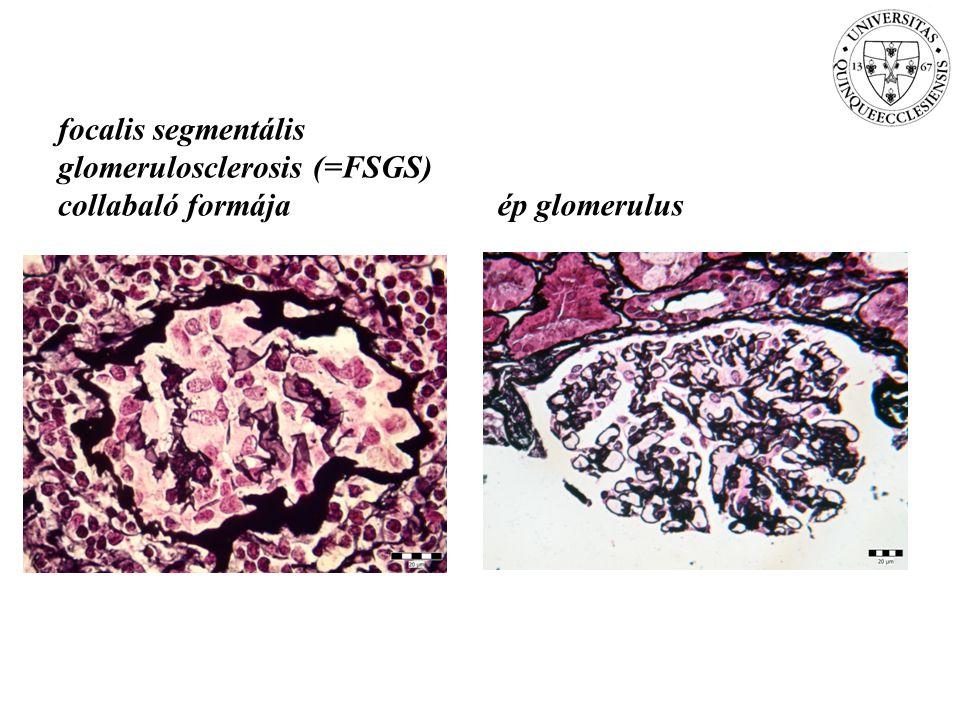 focalis segmentális glomerulosclerosis (=FSGS) collabaló formája