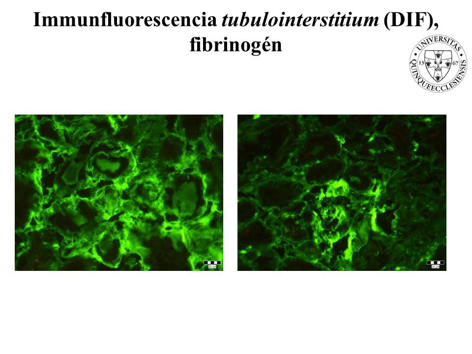 Immunfluorescencia tubulointerstitium (DIF), fibrinogén
