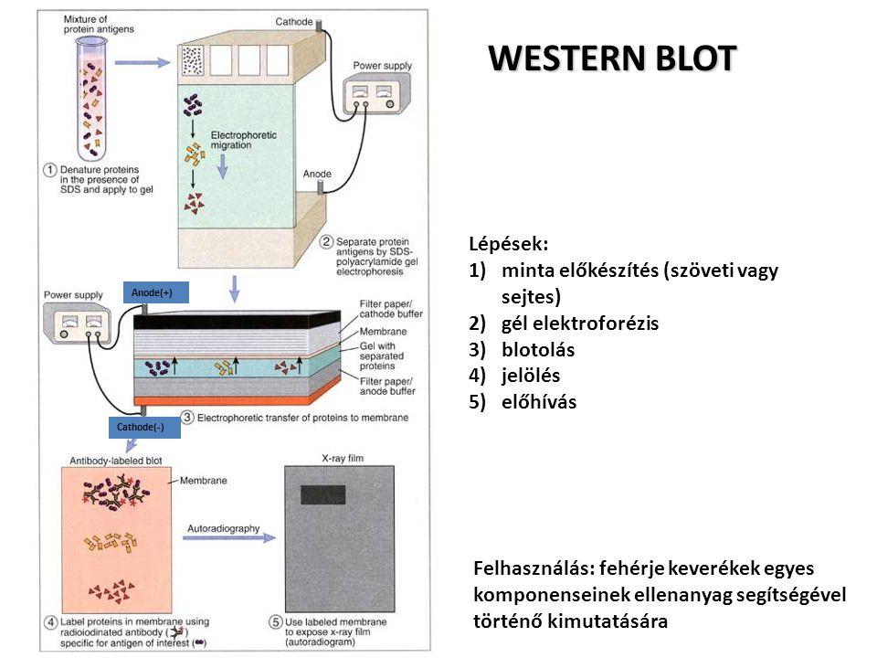 WESTERN BLOT Lépések: minta előkészítés (szöveti vagy sejtes)