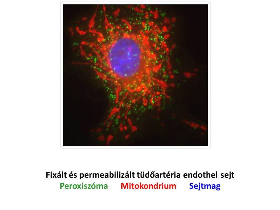 Fixált és permeabilizált tüdőartéria endothel sejt