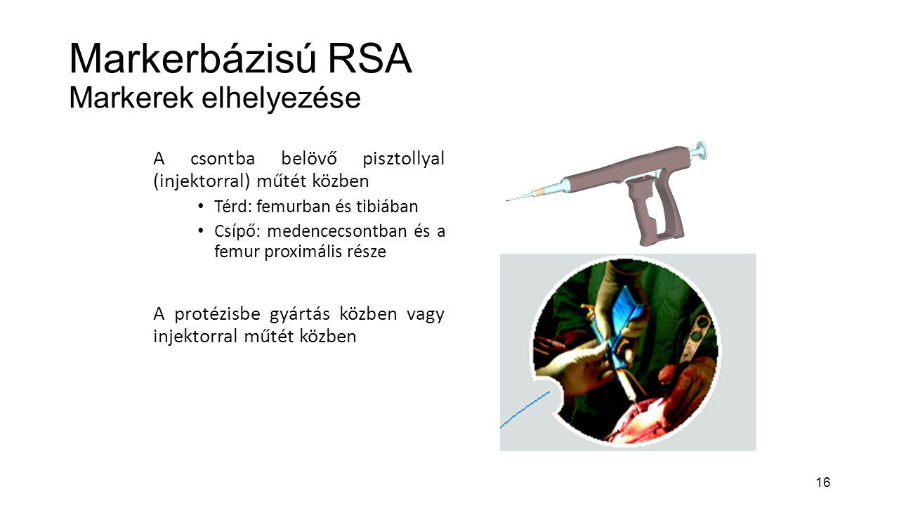Markerbázisú RSA Markerek elhelyezése