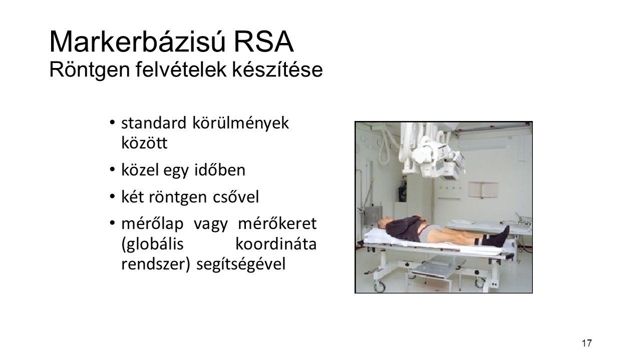 Markerbázisú RSA Röntgen felvételek készítése
