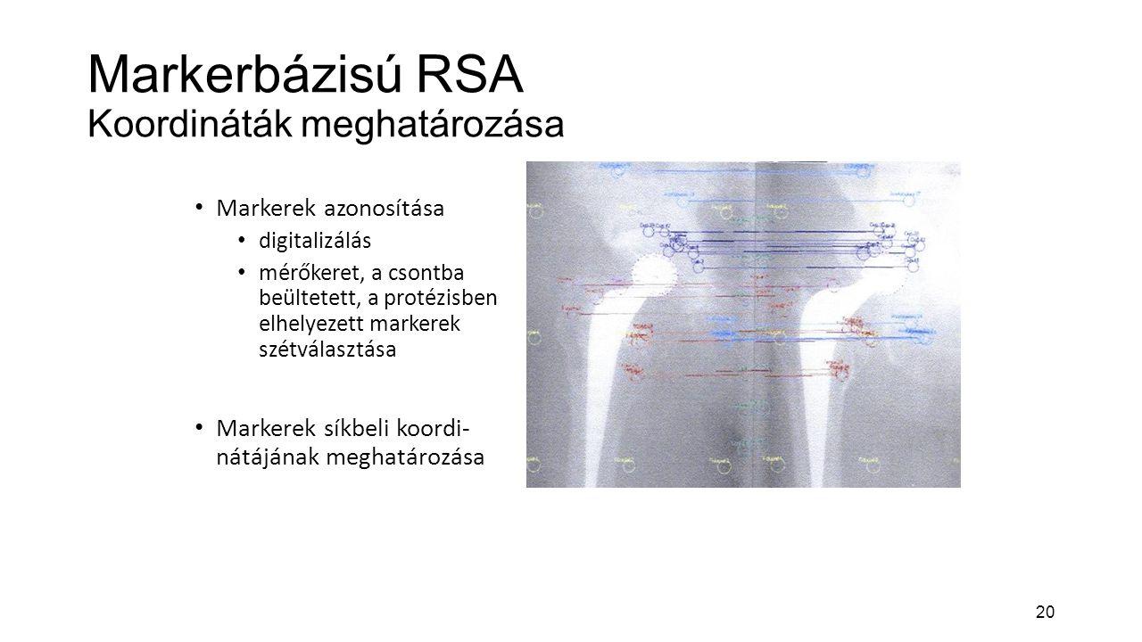 Markerbázisú RSA Koordináták meghatározása