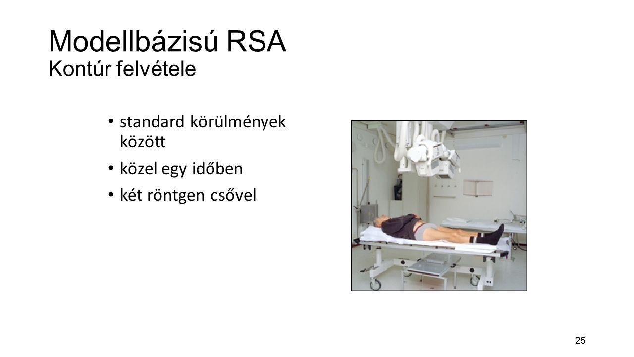 Modellbázisú RSA Kontúr felvétele