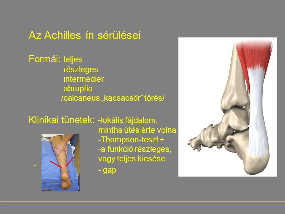 Az Achilles ín sérülései