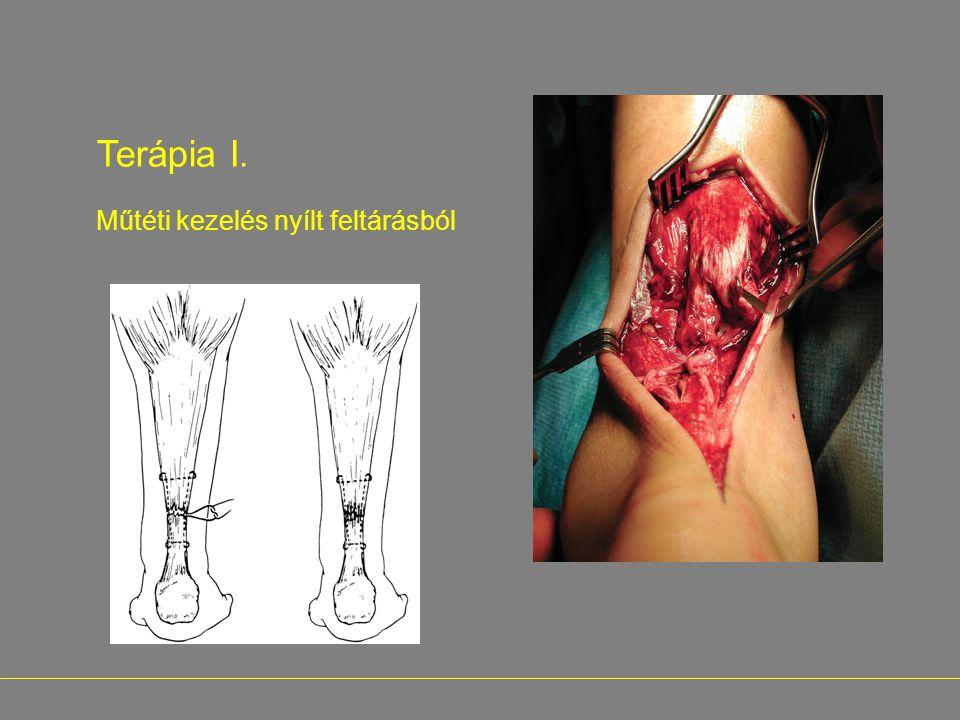 Terápia I. Műtéti kezelés nyílt feltárásból -