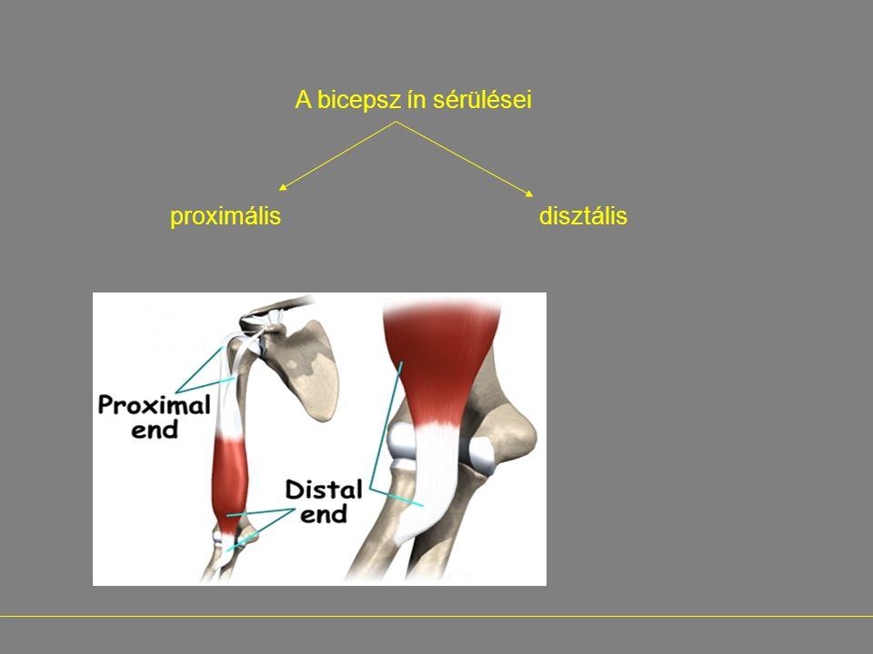 A bicepsz ín sérülései proximális disztális -