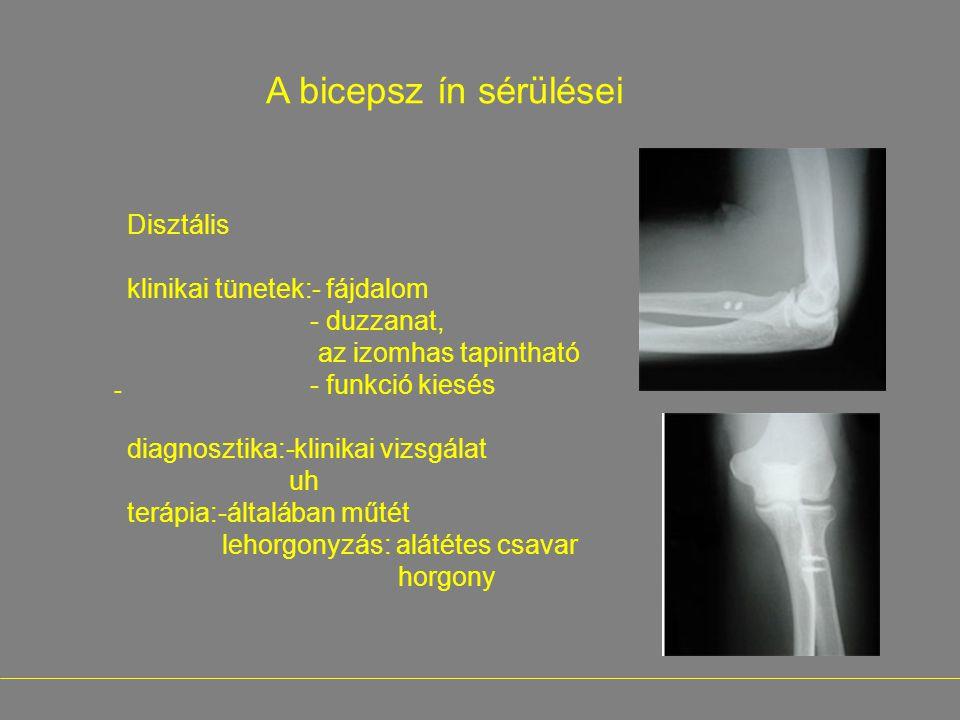 klinikai tünetek:- fájdalom - duzzanat, az izomhas tapintható