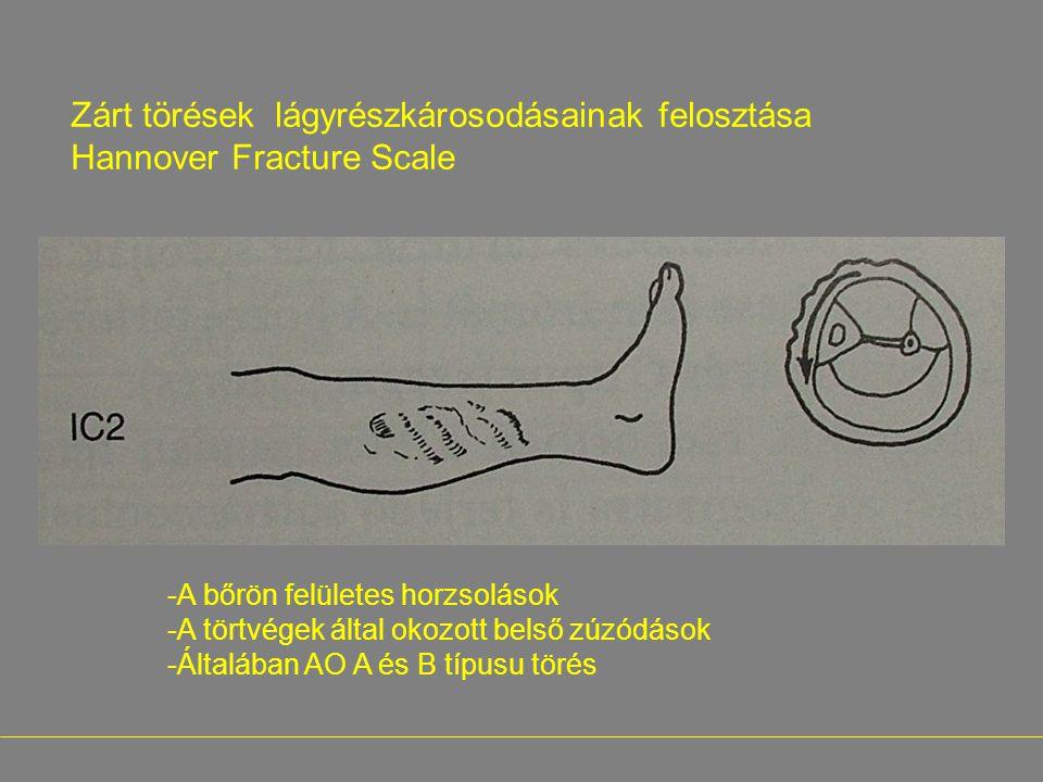 Zárt törések lágyrészkárosodásainak felosztása Hannover Fracture Scale