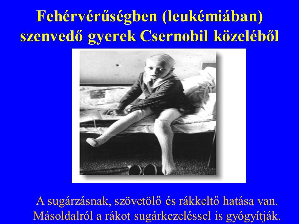 Fehérvérűségben (leukémiában) szenvedő gyerek Csernobil közeléből