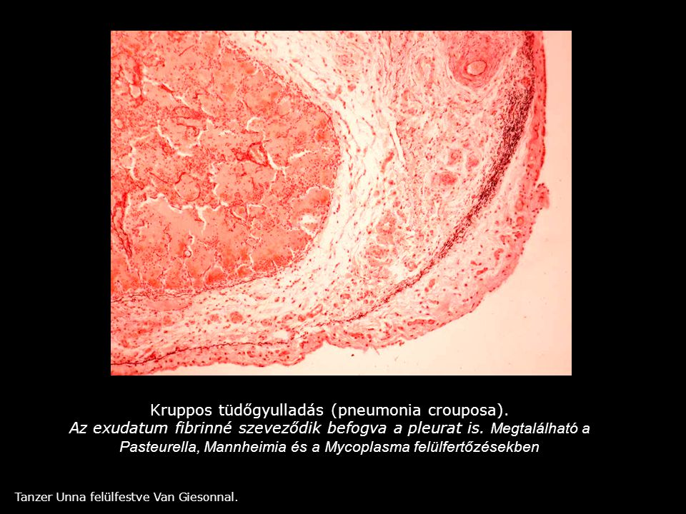 Kruppos tüdőgyulladás (pneumonia crouposa).