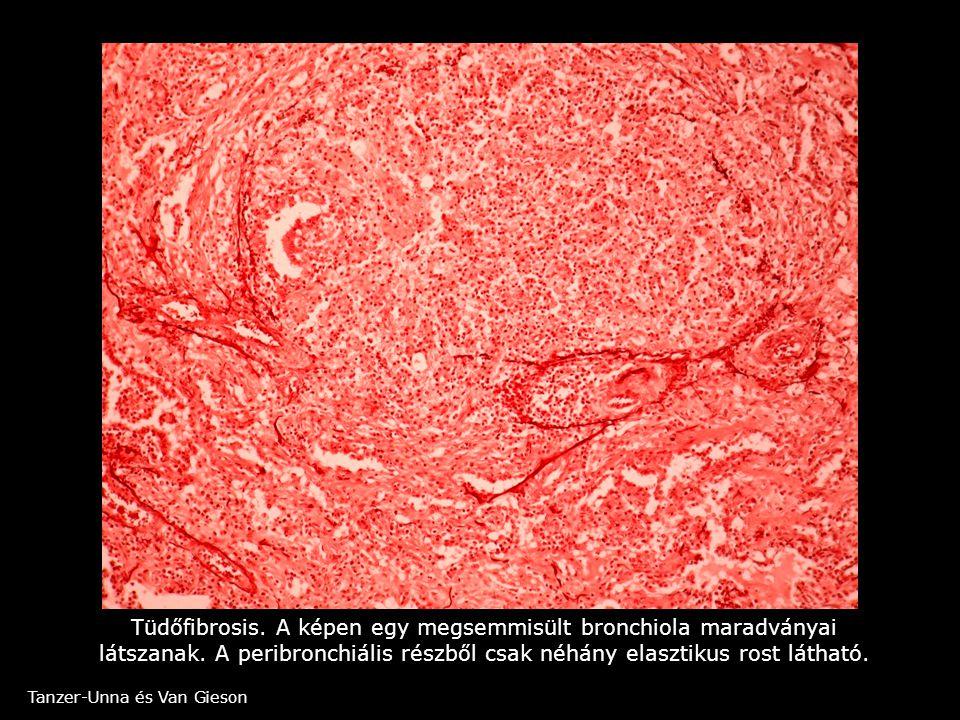Tüdőfibrosis. A képen egy megsemmisült bronchiola maradványai látszanak. A peribronchiális részből csak néhány elasztikus rost látható.