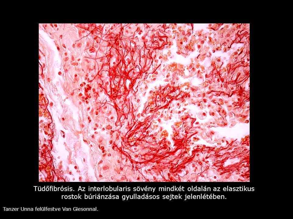 Tüdőfibrósis. Az interlobularis sövény mindkét oldalán az elasztikus rostok búriánzása gyulladásos sejtek jelenlétében.