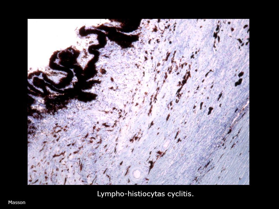 Lympho-histiocytas cyclitis.