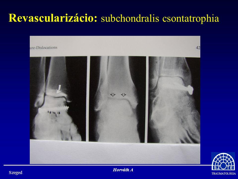 Revascularizácio: subchondralis csontatrophia