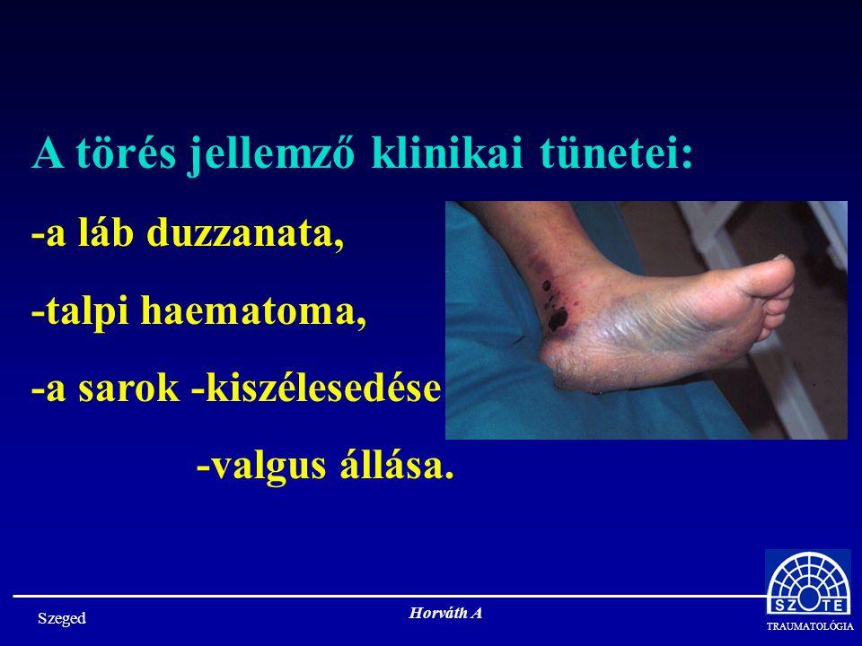 A törés jellemző klinikai tünetei: