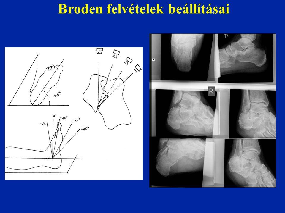 Broden felvételek beállításai