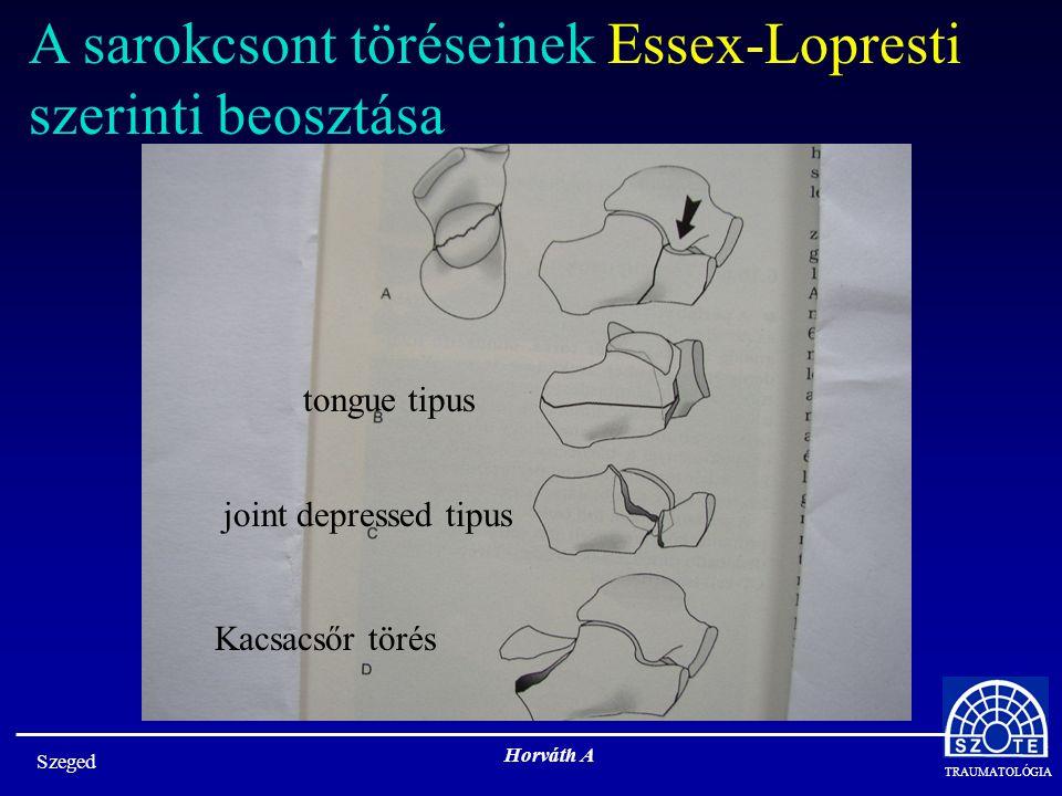 A sarokcsont töréseinek Essex-Lopresti szerinti beosztása