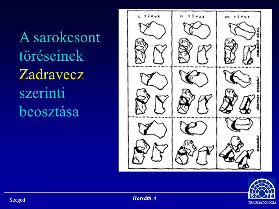 A sarokcsont töréseinek Zadravecz szerinti beosztása