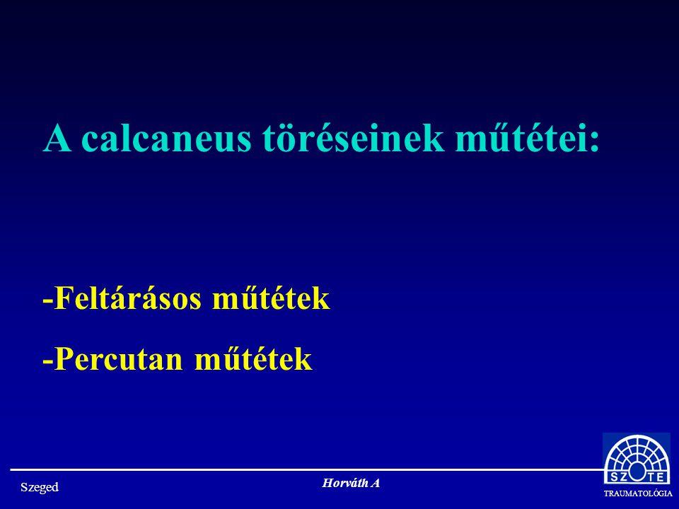 A calcaneus töréseinek műtétei: