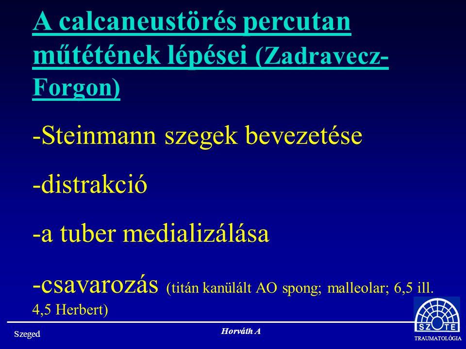 A calcaneustörés percutan műtétének lépései (Zadravecz-Forgon)
