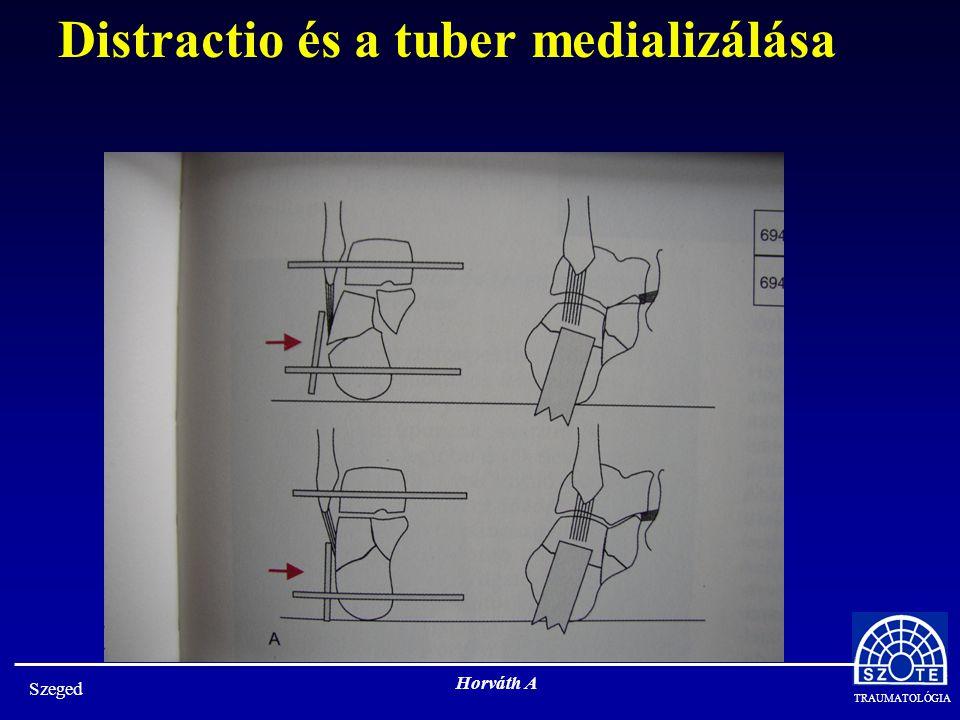 Distractio és a tuber medializálása