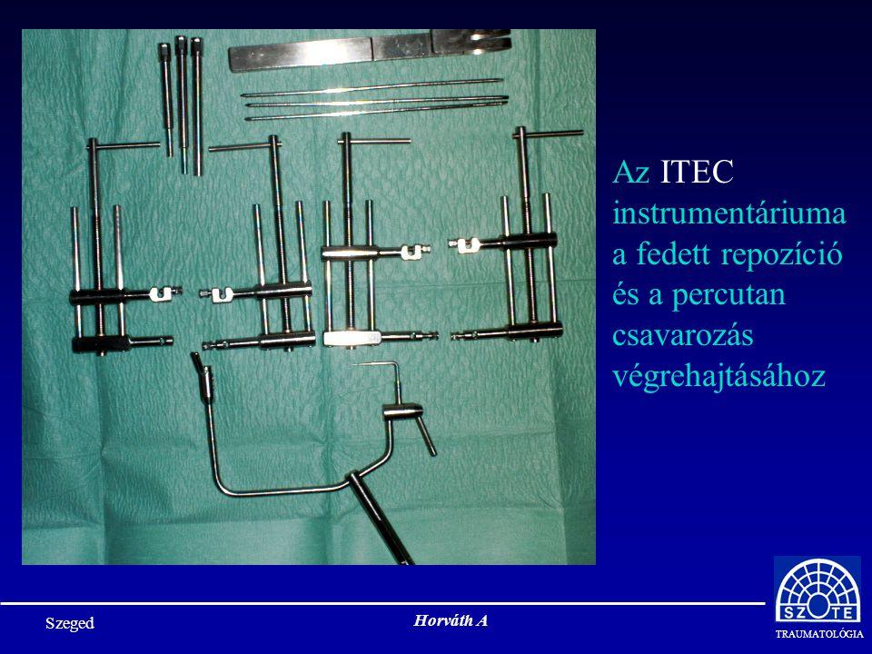 Az ITEC instrumentáriuma a fedett repozíció és a percutan csavarozás végrehajtásához