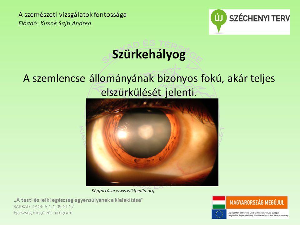 A szemészeti vizsgálatok fontossága