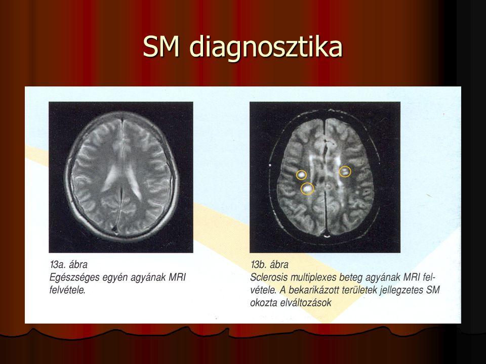 SM diagnosztika