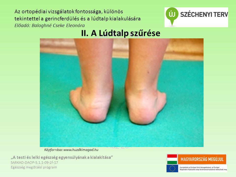 Az ortopédiai vizsgálatok fontossága, különös tekintettel a gerincferdülés és a lúdtalp kialakulására