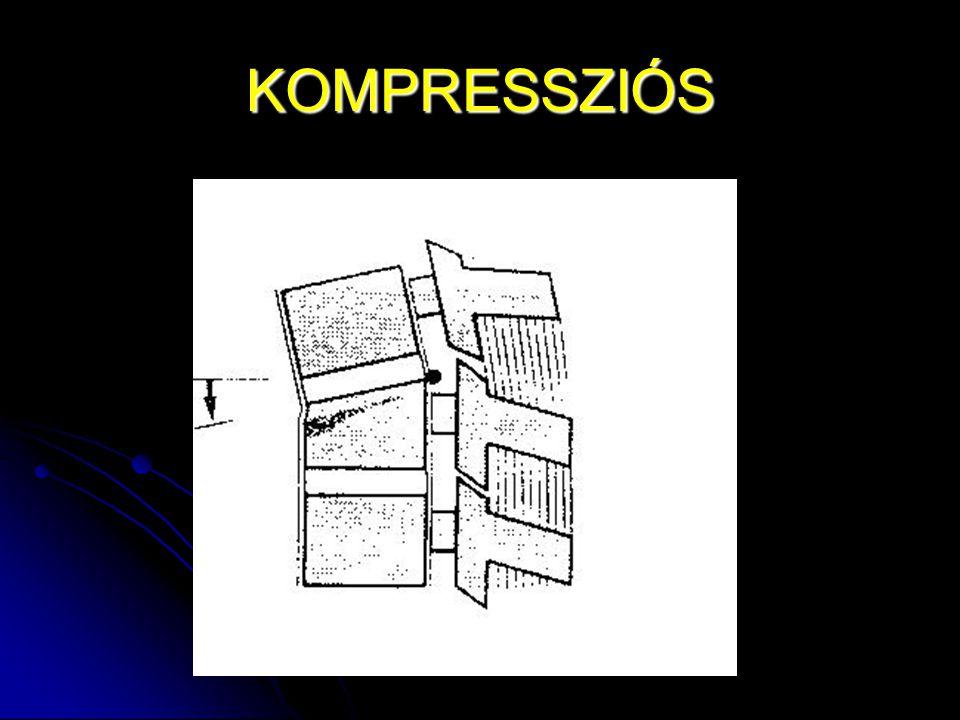 KOMPRESSZIÓS