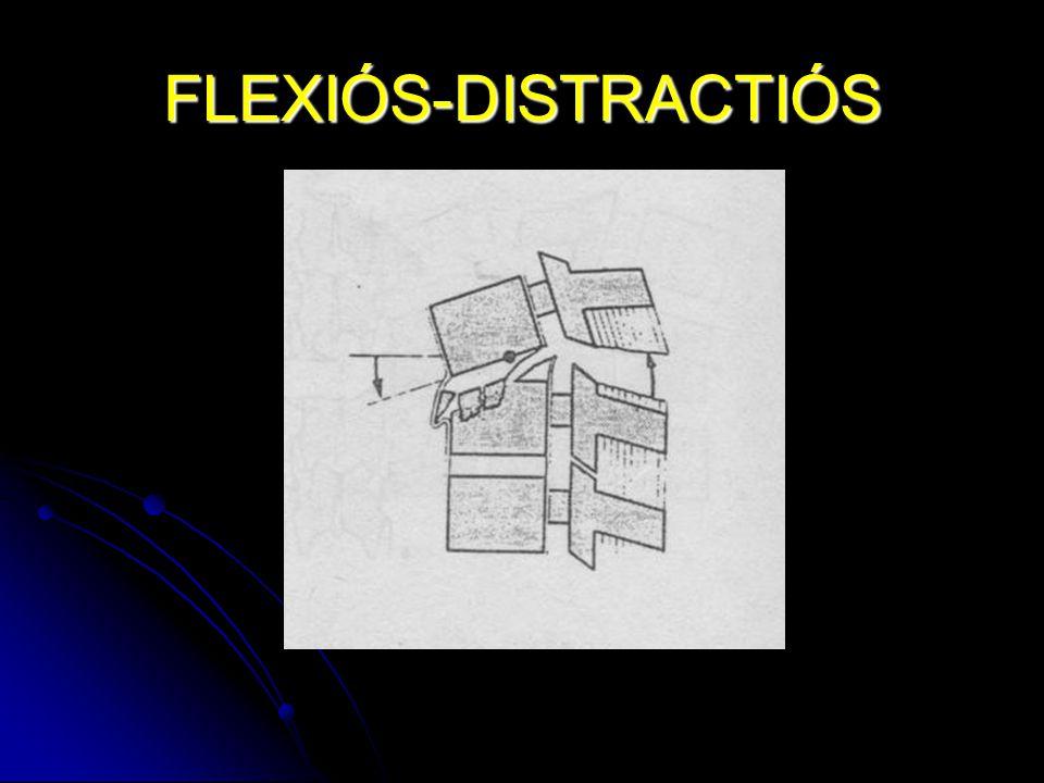 FLEXIÓS-DISTRACTIÓS