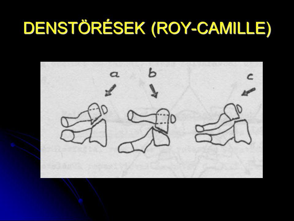 DENSTÖRÉSEK (ROY-CAMILLE)