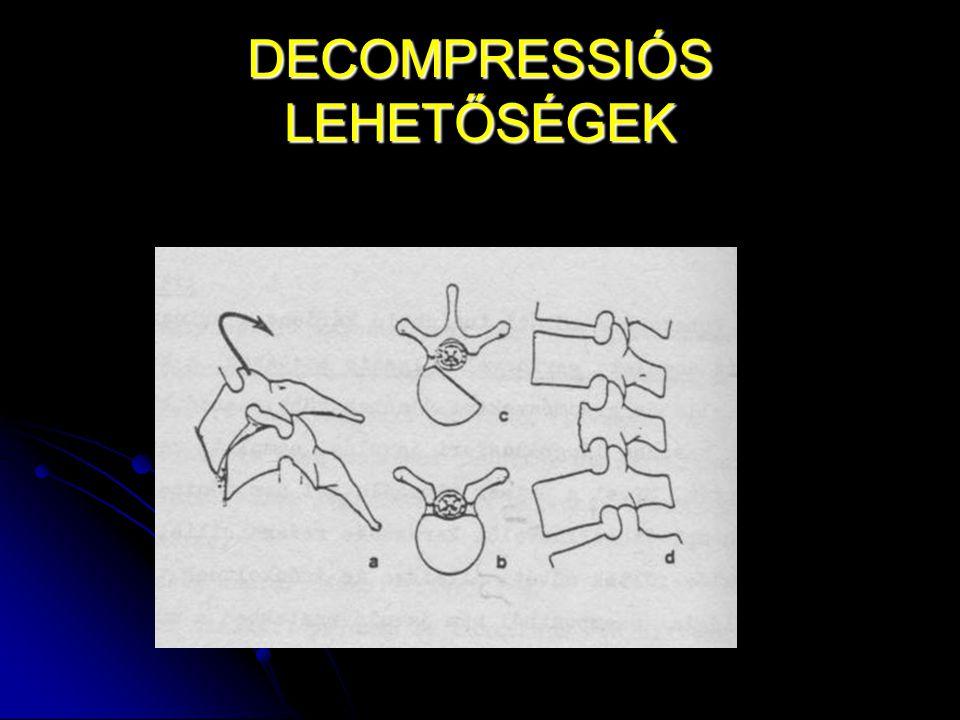 DECOMPRESSIÓS LEHETŐSÉGEK