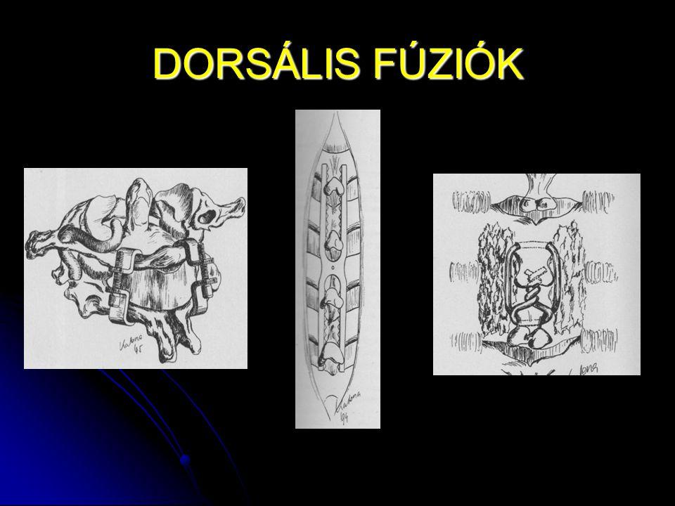 DORSÁLIS FÚZIÓK