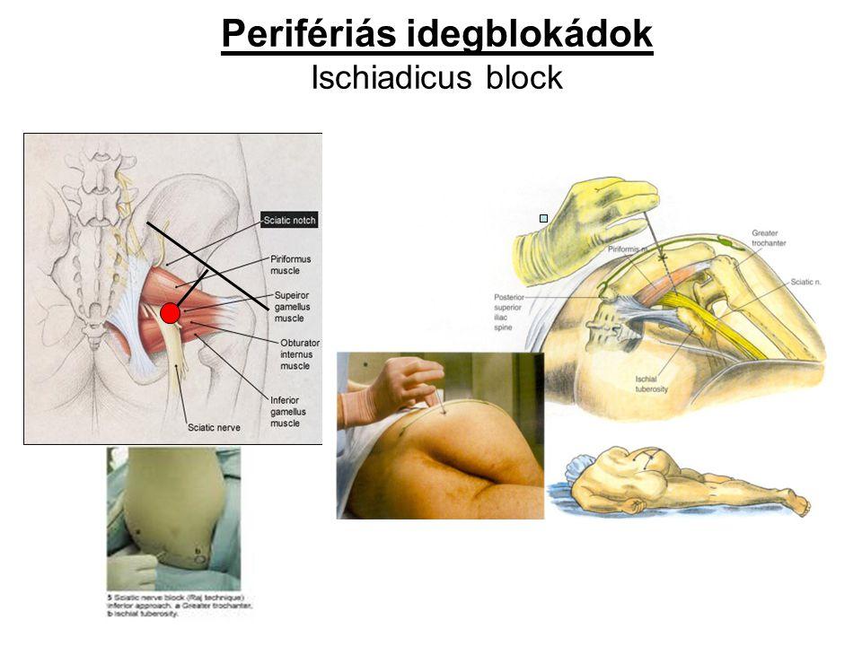 Perifériás idegblokádok Ischiadicus block