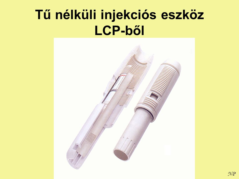 Tű nélküli injekciós eszköz LCP-ből