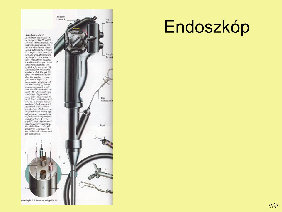 Endoszkóp