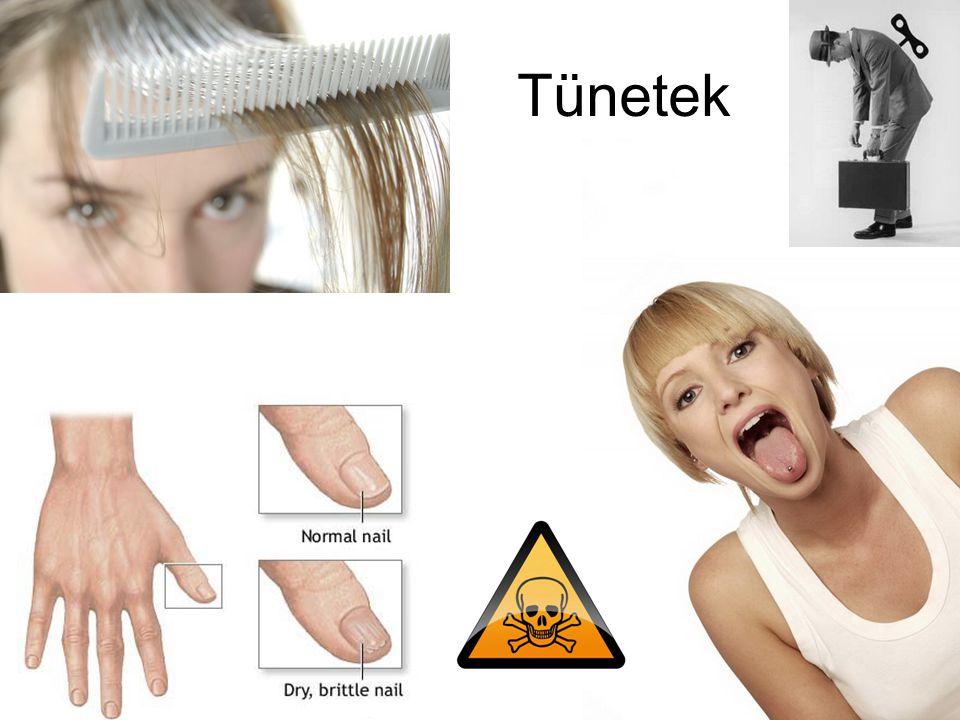 Tünetek