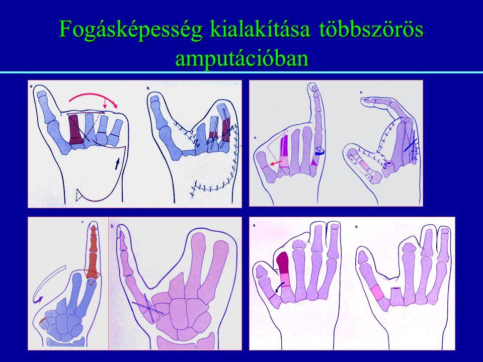 Fogásképesség kialakítása többszörös amputációban