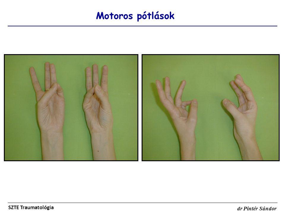 Motoros pótlások SZTE Traumatológia dr Pintér Sándor
