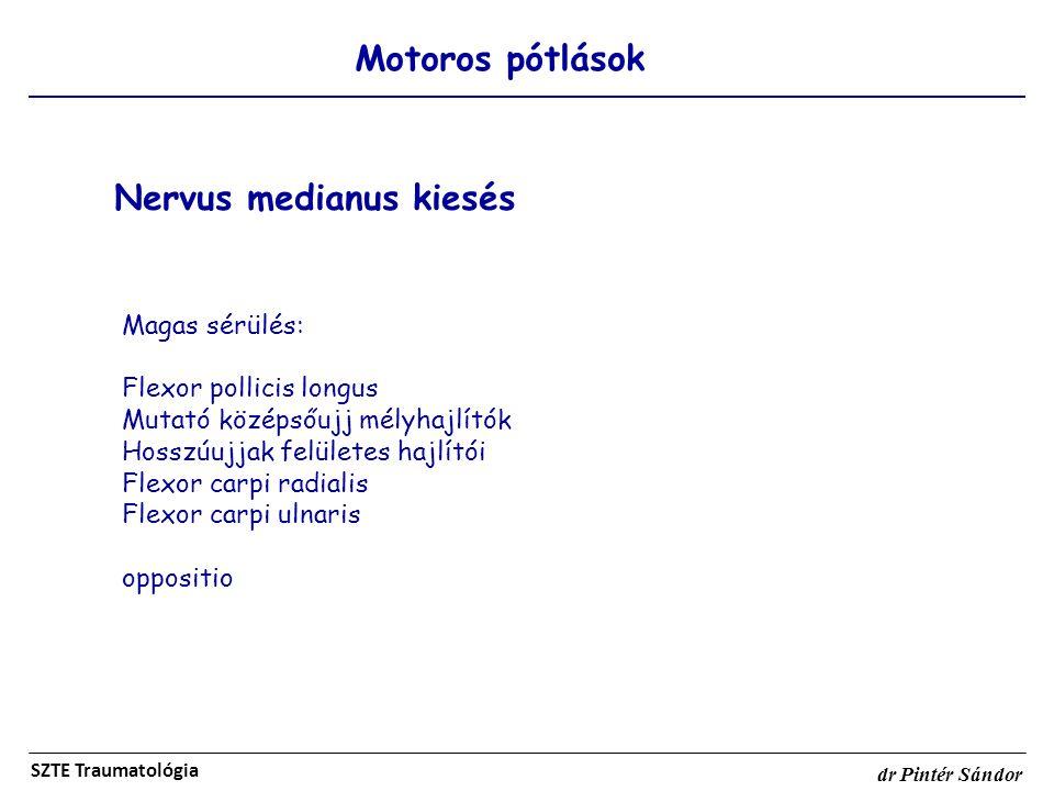 Nervus medianus kiesés