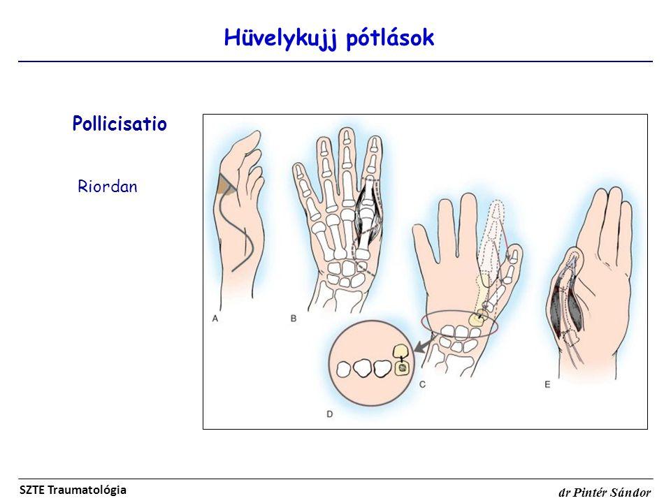 Hüvelykujj pótlások Pollicisatio Riordan SZTE Traumatológia