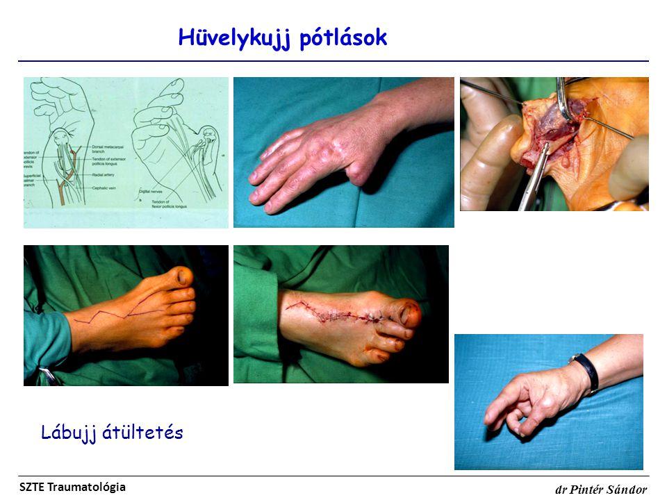 Lábujj átültetés Hüvelykujj pótlások SZTE Traumatológia