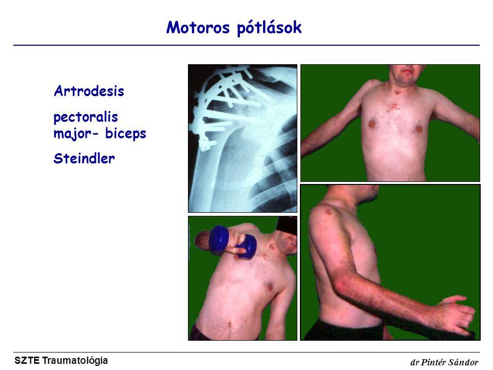 pectoralis major- biceps