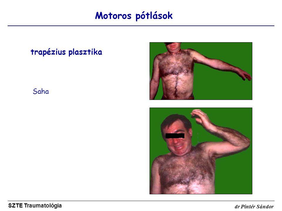 trapézius plasztika Motoros pótlások Saha SZTE Traumatológia