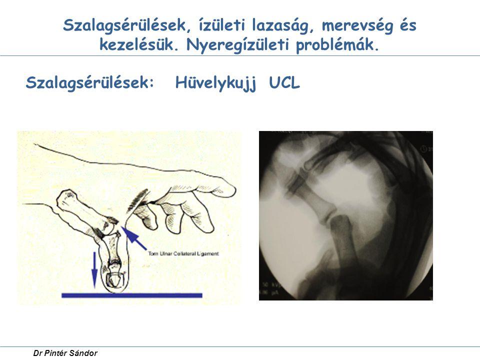 Szalagsérülések: Hüvelykujj UCL