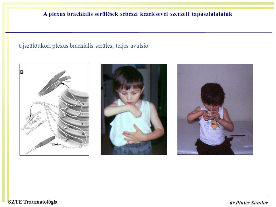 Újszülöttkori plexus brachialis sérülés; teljes avulsio