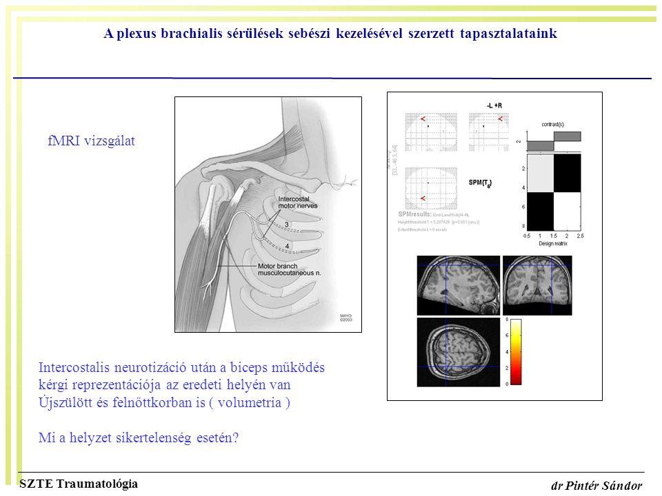 Intercostalis neurotizáció után a biceps működés
